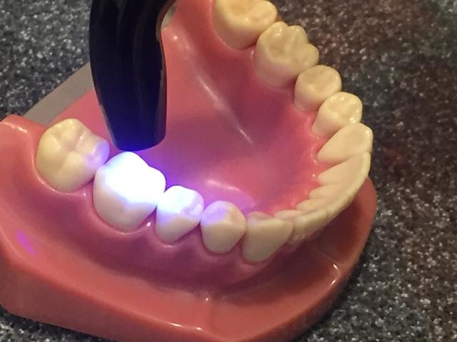 むし歯の治療法(1)