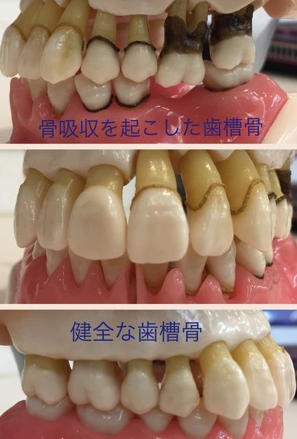 歯肉が腫れた!