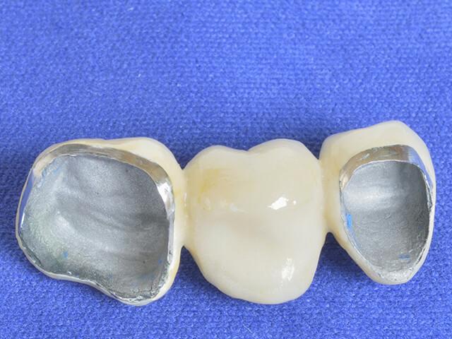 【C4 治療方法】抜歯 → ブリッジ・入れ歯・インプラント