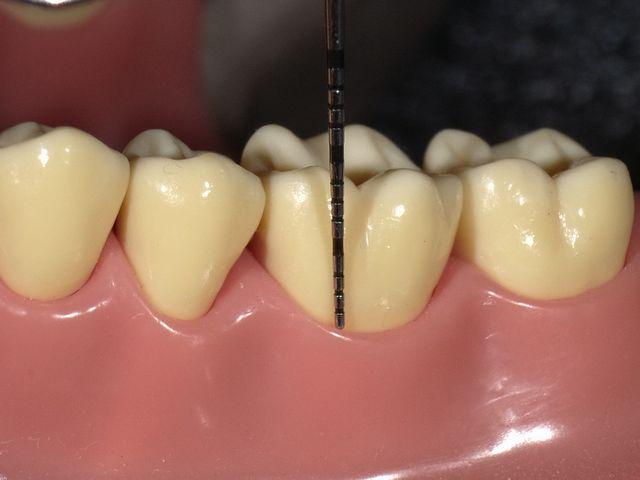 歯周病の話