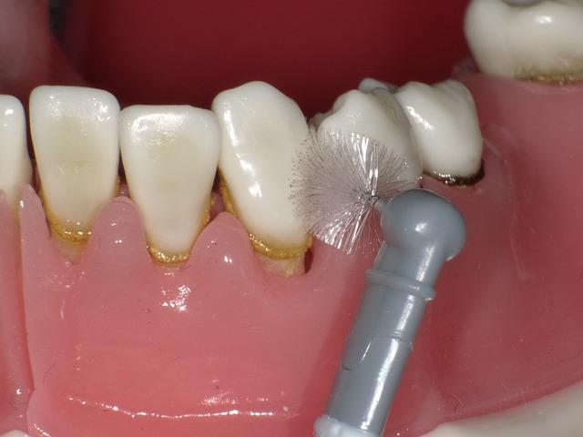 歯間ブラシについて