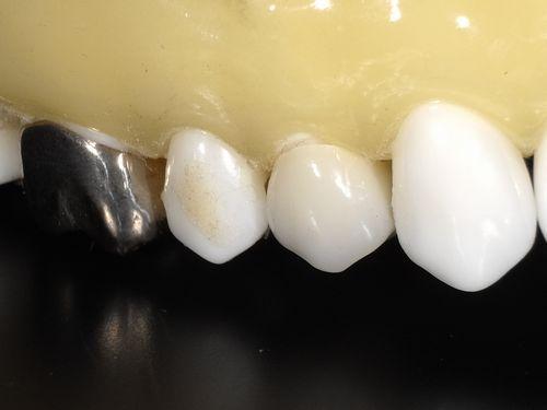 保険でも白い歯のブリッジ