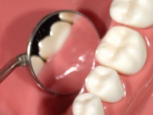 なるほど歯科検診?