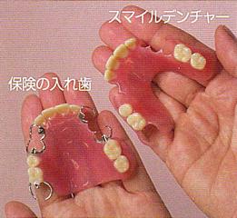 従来の保険の入れ歯との違いとは?