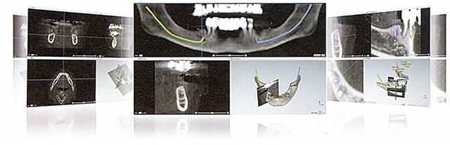 POINT1 3Dでのデジタル設計+治療計画が可能