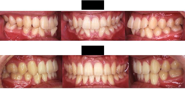 19歳 男子(前歯の歯ならびが気になるので治療希望)