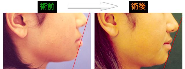 矯正治療による口元の変化 症例2