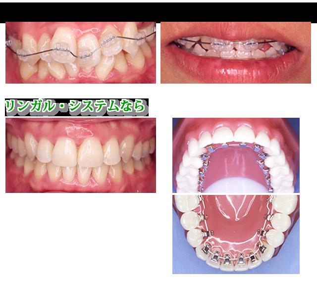 見えない矯正歯科 リンガル・システム