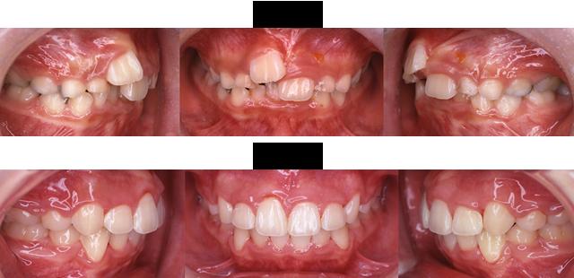 13歳 女子 (前歯の重なりが気になるとのことで治療希望)