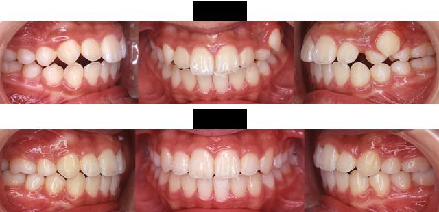 11歳 女子 (左上の犬歯がはみ出てきたので治療希望)