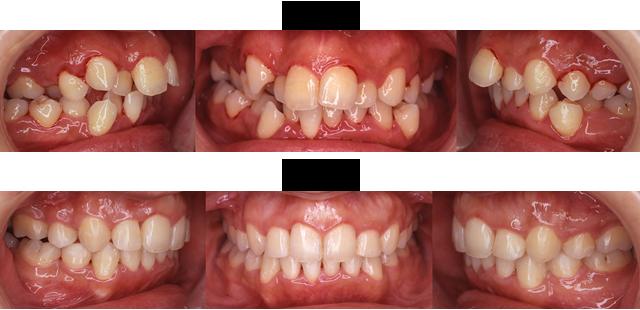 28歳 女子 (歯ならびが悪いので歯ブラシが上手に出来ないので治療希望)