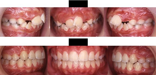 11歳 女子 (前歯の重なりがきになるので治療希望)