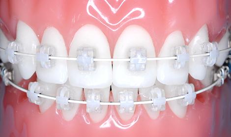 透明な装置を前歯に使用しています。