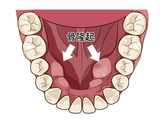 歯茎に固いコブ(骨隆起)がある