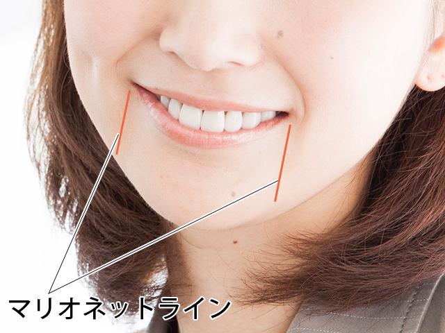 マリオネットライン(口角から下に伸びる2本のライン)が気になる