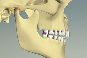 顎関節は安定し、奥歯だけで噛んでいる状態
