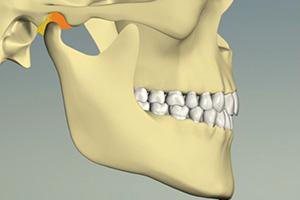 歯がしっかり噛むと、顎関節が浮いている状態