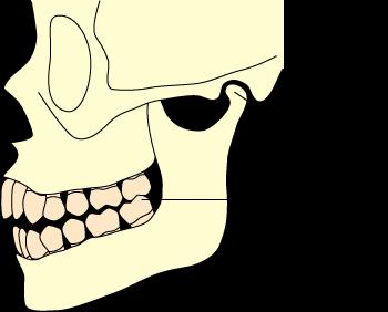 中心位(顎の蝶番運動の回転軸が中心に位置している状態)において、上下の歯が一箇所だけ接触し、他の歯は接触していない場合