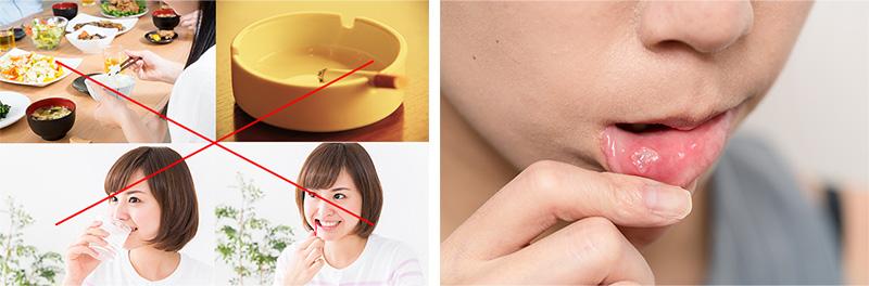 唾液検査の注意事項イメージ画像