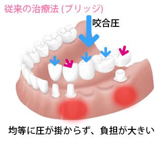 従来の入れ歯2