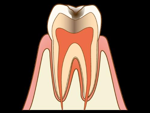 C2 - むし歯の中期状態