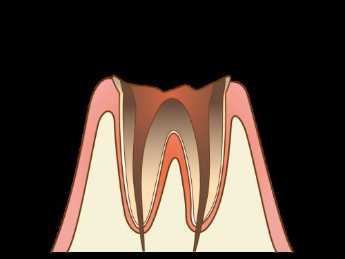 C4 - むし歯の末期状態