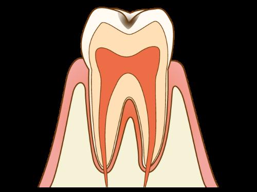 C1 - むし歯の初期状態