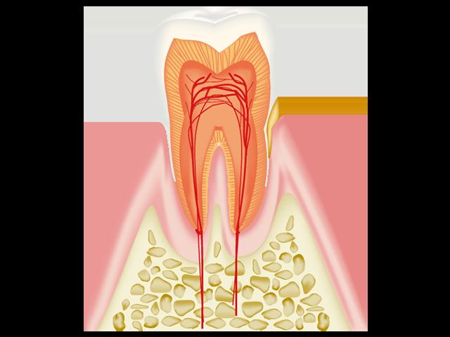 進行度1 歯茎(歯肉)が腫れ始める