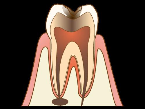 C3 - むし歯の後期状態