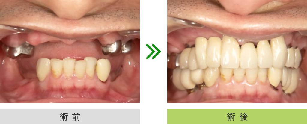 インプラント症例(上顎・下顎)