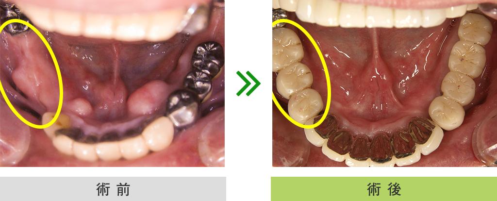 インプラント症例(下顎・3本埋入)