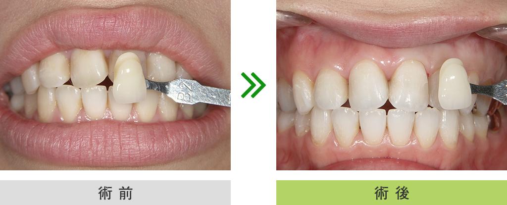 ホワイトニング症例(前歯 ホワイトニング)