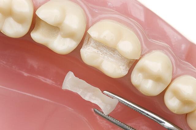 虫歯を削る → 詰め物(C1~C2)