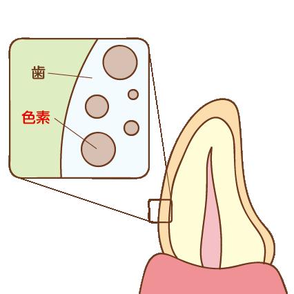歯の色が黄色い状態