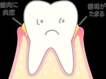 【進行度1】歯ぐきがはれ、出血する