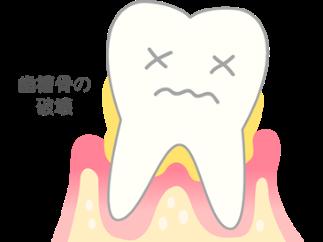 【進行度3】歯がぐらついてくる