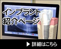 インプラント紹介ページ