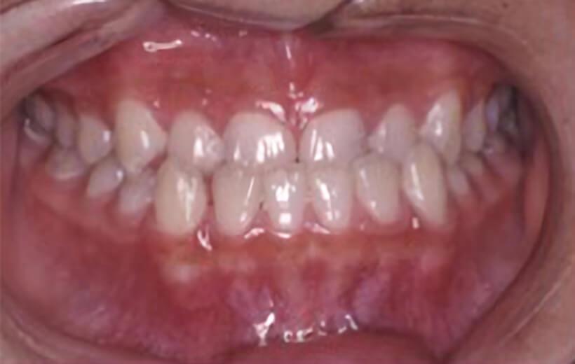 治療前イメージ画像
