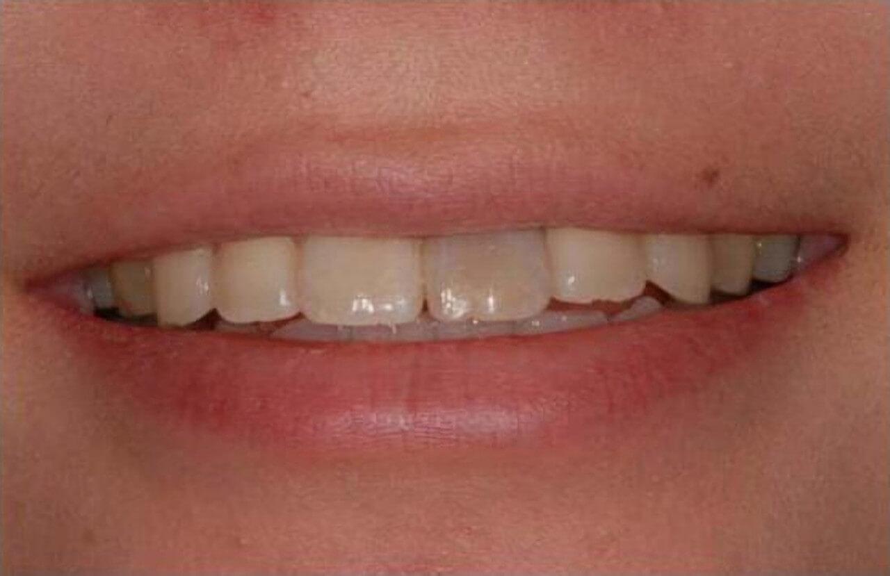 治療前の口元イメージ画像