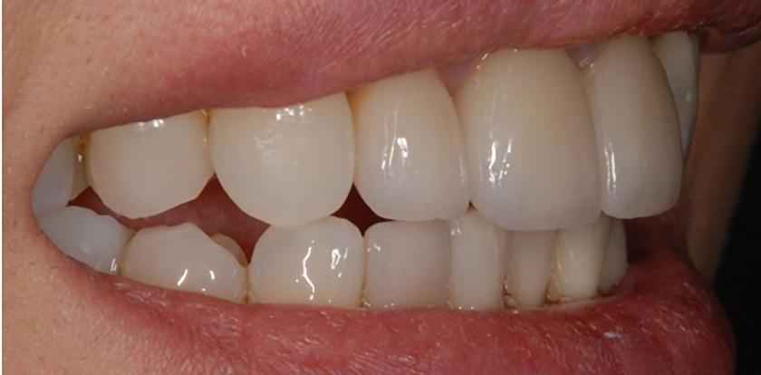 治療後の口元イメージ画像