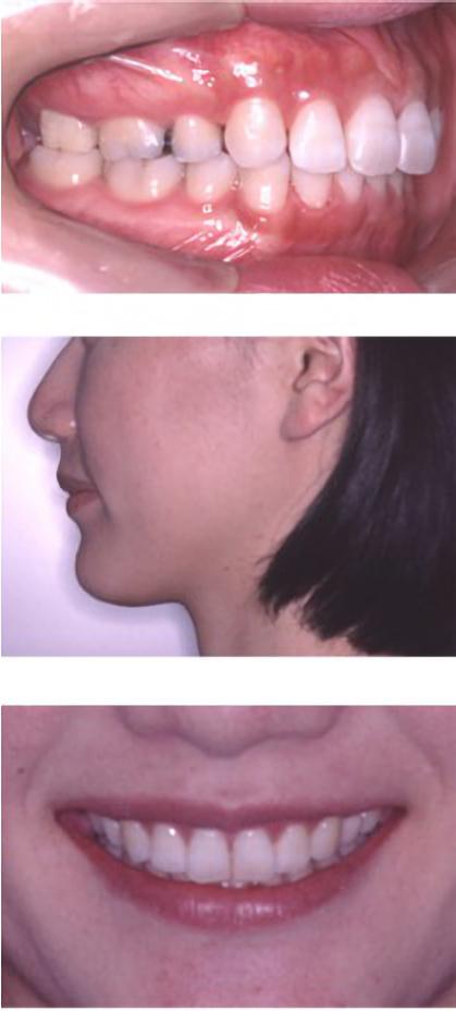 治療後イメージ画像