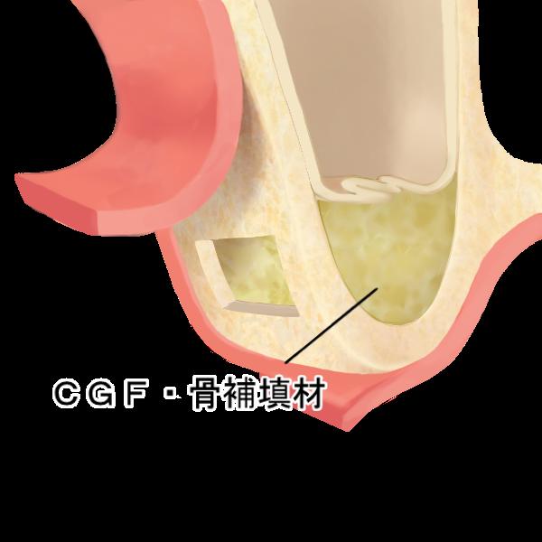 STEP1 歯肉と骨の除去と骨補填剤の充填