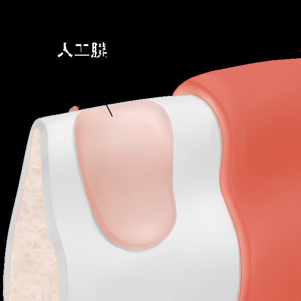 STEP2 メンブレン(人工膜)で露出部分を覆う