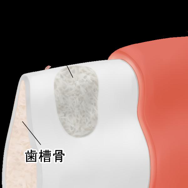STEP1 骨補填材を補充
