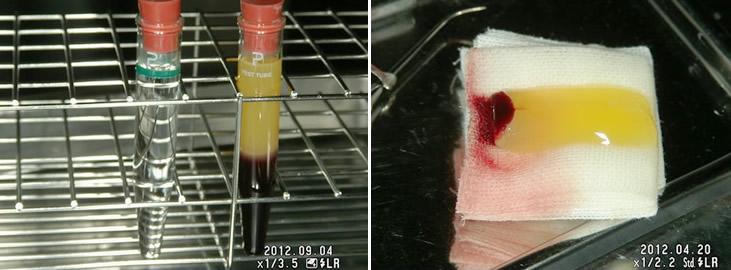 血小板とフィブリンを多く含んだ、ゲル状PRFが出来ます。