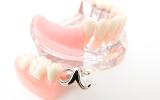 義歯(入れ歯)