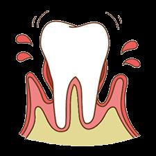 進行度3 歯槽骨の破壊