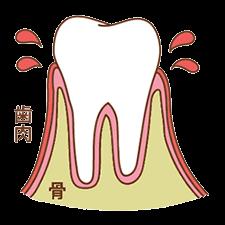 進行度1 歯肉炎
