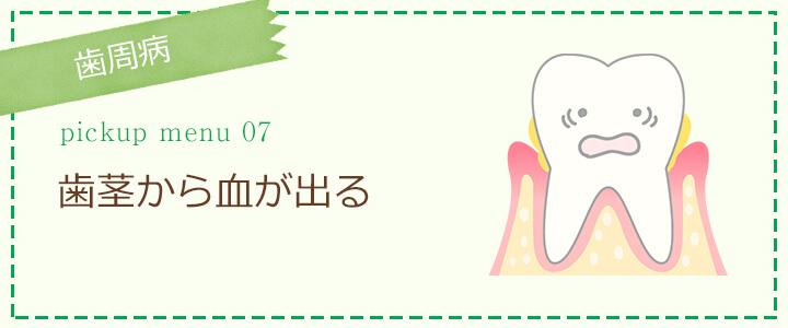 歯周病 - 歯茎から血が出る