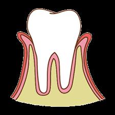 進行度2 歯周炎